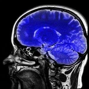 Risonanza magnetica funzionale neuroni specchio