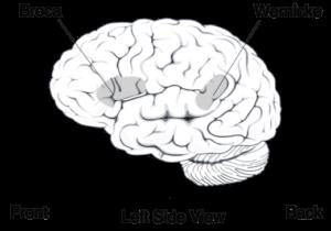 Aree linguaggio Broca e Wernicke